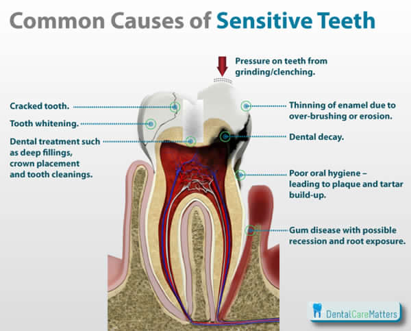 Sensitive Teeth Pain 11 Of Your Biggest Questions Answered